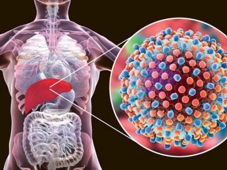 HEALTH HACKS: All You Need to Know About Hepatitis B, Hepatitis C and Prevention